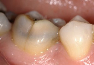 cracked-molar