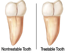 tooth2-2