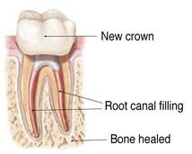 tooth_13