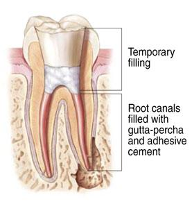 tooth_7