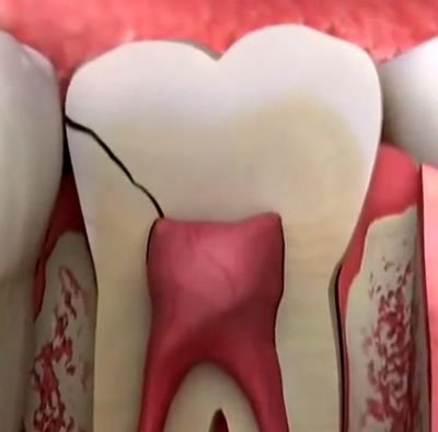 why-does-a-cracked-tooth-hurt--(2)